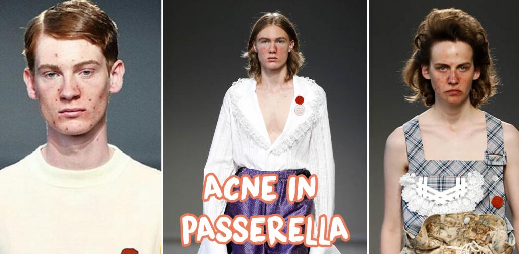 acne in passerella